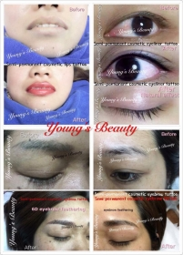 Young's Beauty thumbnail version 18
